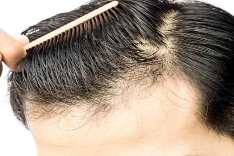 برای جلوگیری از ریزش مو چه کنیم؟