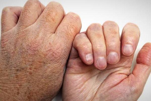 95 درصد مردم هرگز جذام نمی گیرند، عمده ترین نشانه بیماری